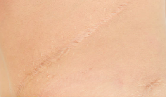Mederma Vs Cicatricure Differences Best For Scars Stretch Marks